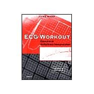 ECG Workout Exercises in Arrhythmia Interpretation