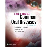 Color Atlas of Common Oral Diseases