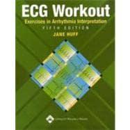 ECG Workout Exercises in Arrhythmia Interpretation