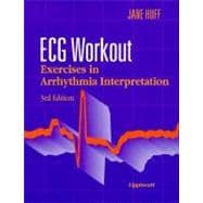 ECG Workout : Exercises in Arrhythmia Interpretation