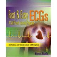 Pocket Guide for Fast and Easy Ecgs
