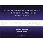 Rapid Interpretation of ECGs in Emergency Medicine A Visual Guide